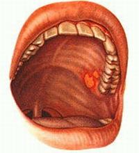 лекарственный запах изо рта